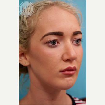 18-24 year old woman treated with Chin Surgery -Sliding Genioplasty after 3473441