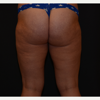 25-34 year old woman treated with Cellulite Treatment after 3819695