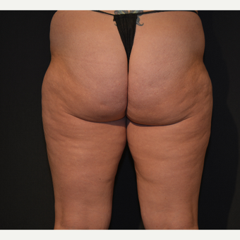 25-34 year old woman treated with Cellulite Treatment before 3819695