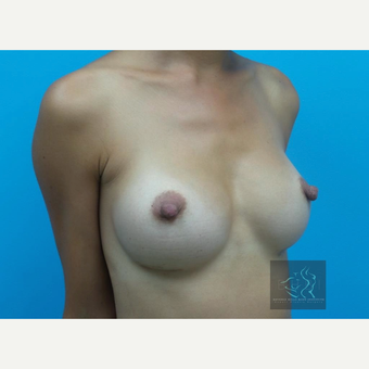 25-34 year old woman treated with Breast Implants after 3095185