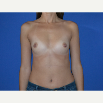 25-34 year old woman treated with Breast Augmentation before 3334501
