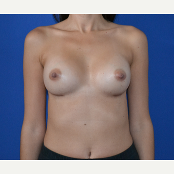 25-34 year old woman treated with Breast Augmentation after 3334501