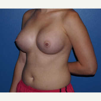 25-34 year old woman treated with Breast Augmentation after 3326114
