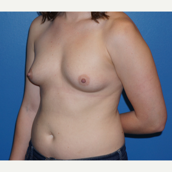 25-34 year old woman treated with Breast Augmentation before 3326114