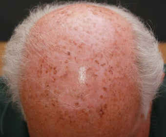 Laser and Chemical Peel for Sun Damage on Scalp after 1357711