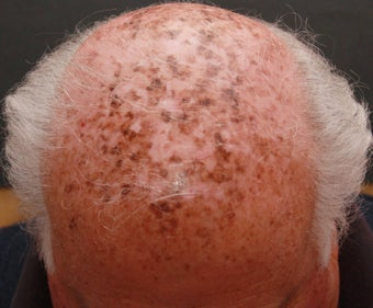 Laser and Chemical Peel for Sun Damage on Scalp before 1357711