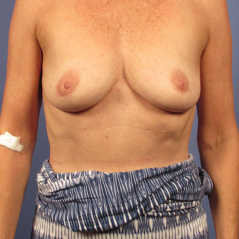 55-64 year old woman treated with Breast Augmentation before 2994825