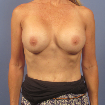 55-64 year old woman treated with Breast Augmentation after 2994825