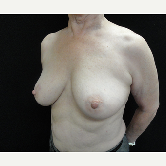 55-64 year old woman treated with Breast Augmentation before 3823144