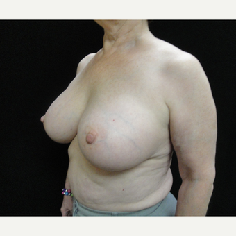 55-64 year old woman treated with Breast Augmentation after 3823144