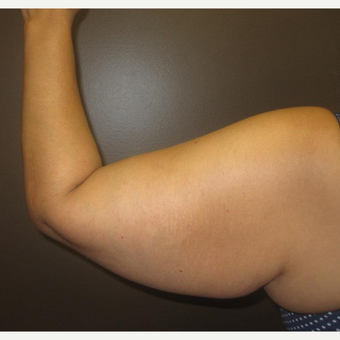 45-54 year old woman treated with Arm Lift before 3253523