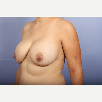25-34 year old woman treated with Breast Lift with Implants before 3110305