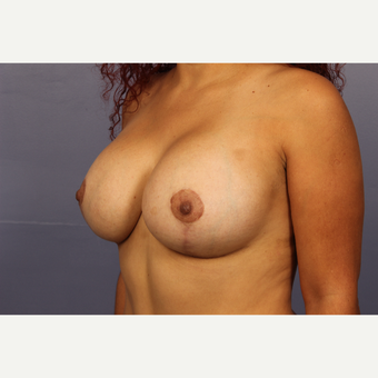 25-34 year old woman treated with Breast Lift with Implants after 3110305