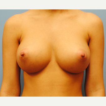 20 year old woman, Breast Augmentation, 380 cc high profile filled to 380 , A to D cup after 3623365