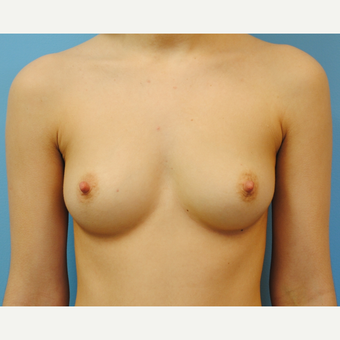 20 year old woman, Breast Augmentation, 380 cc high profile filled to 380 , A to D cup before 3623365