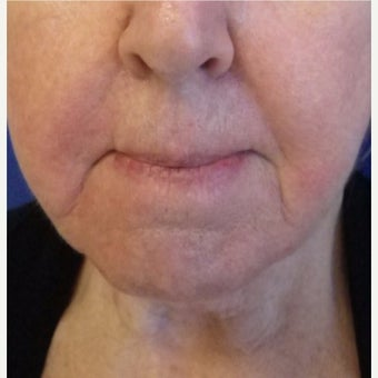 65-74 year old woman treated with Restylane before 2072935