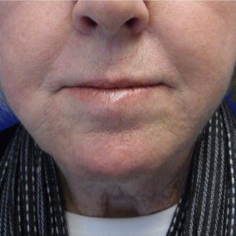 65-74 year old woman treated with Restylane after 2072935