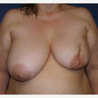 52 year old woman treated with DIEP flap Breast Reconstruction before 3383452