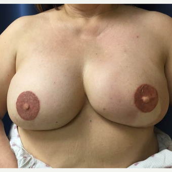 52 year old woman treated with DIEP flap Breast Reconstruction after 3383452