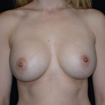 25-34 year old woman treated with Breast Augmentation after 3099190