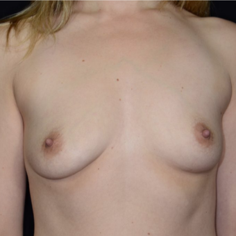 25-34 year old woman treated with Breast Augmentation before 3099190