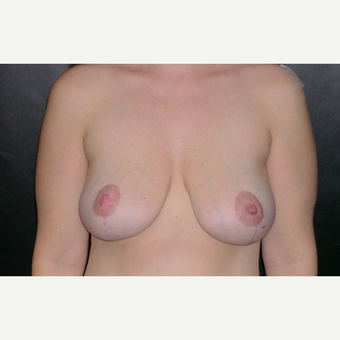 45-54 year old woman treated with Breast Lift after 3246199