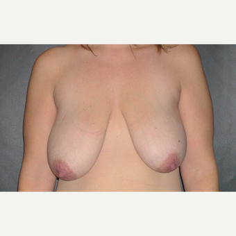 45-54 year old woman treated with Breast Lift before 3246199