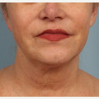 Accusculpt laser-assisted liposuction to the jowels after 3070818