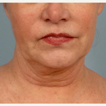 Accusculpt laser-assisted liposuction to the jowels before 3070818