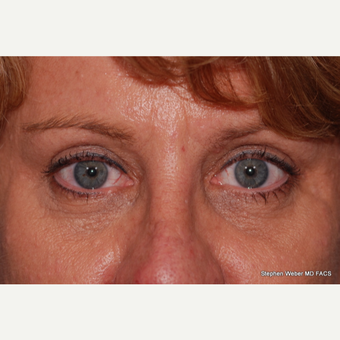 45-54 year old woman treated with Eyelid Surgery after 3624417