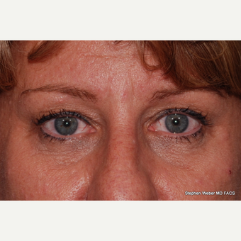 45-54 year old woman treated with Eyelid Surgery before 3624417