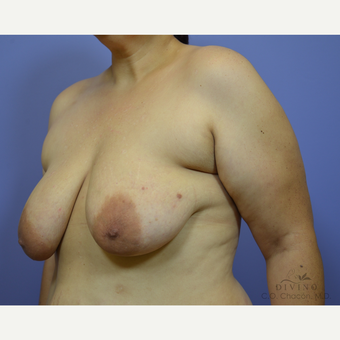 35-44 year old woman treated with Breast Lift with Implants before 3419880