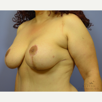 35-44 year old woman treated with Breast Lift with Implants after 3419880