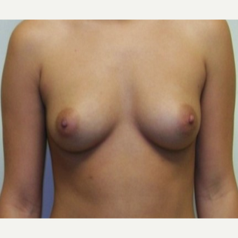 25-34 year old woman treated with Breast Augmentation before 3131823