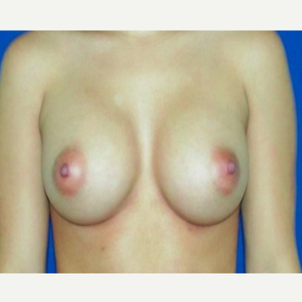 25-34 year old woman treated with Breast Augmentation after 3131823