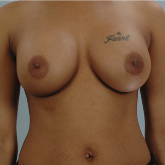 Breast Implants after 3033308