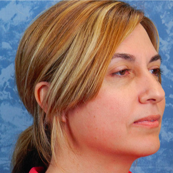 Chin Surgery after 3124370