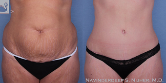 35-44 year old woman treated with Tummy Tuck before 3767927