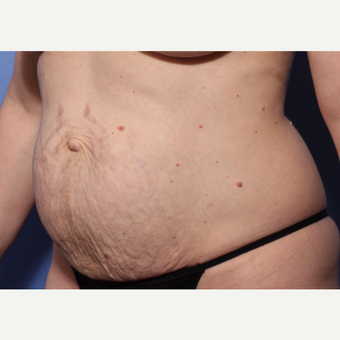 35-44 year old woman treated with Abdominal Etching before 3782912