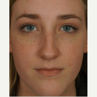 18-24 year old woman treated with rhinoplasty before 3245047