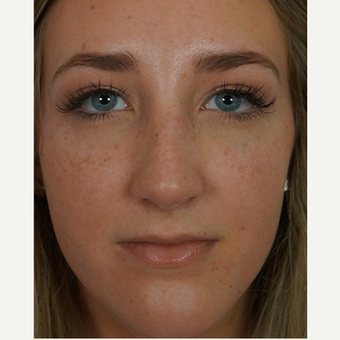 18-24 year old woman treated with rhinoplasty after 3245047