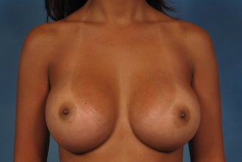 410 Cohesive Gel Breast Implants after 1112423
