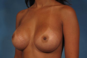 410 Cohesive Gel Breast Implants 1112423