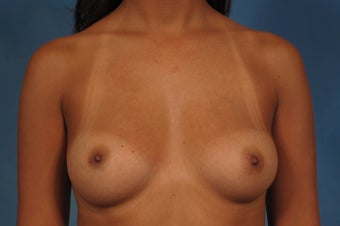 410 Cohesive Gel Breast Implants before 1112423