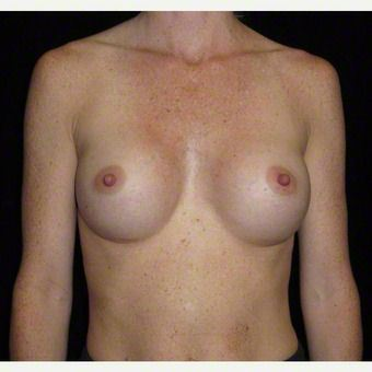 29 year old woman treated with Breast Augmentation after 3103603