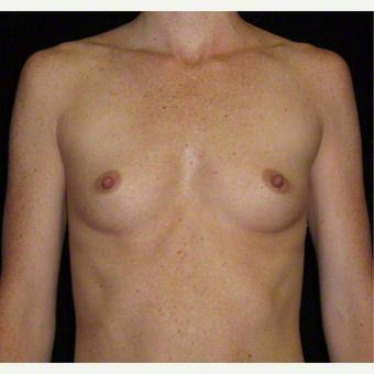 29 year old woman treated with Breast Augmentation before 3103603