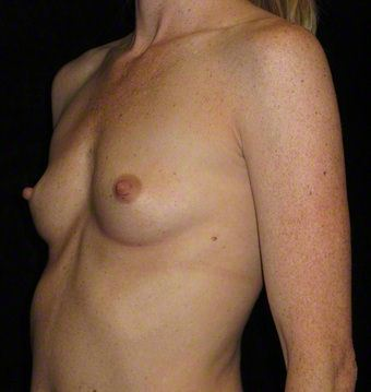 29 year old woman treated with Breast Augmentation 3103603