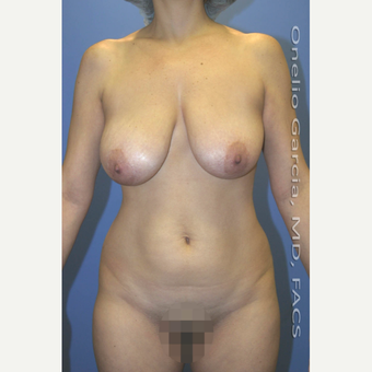 35-44 year old woman treated with Mommy Makeover before 3010202