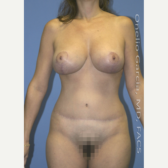 35-44 year old woman treated with Mommy Makeover after 3010202