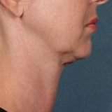 Kybella before 1853635